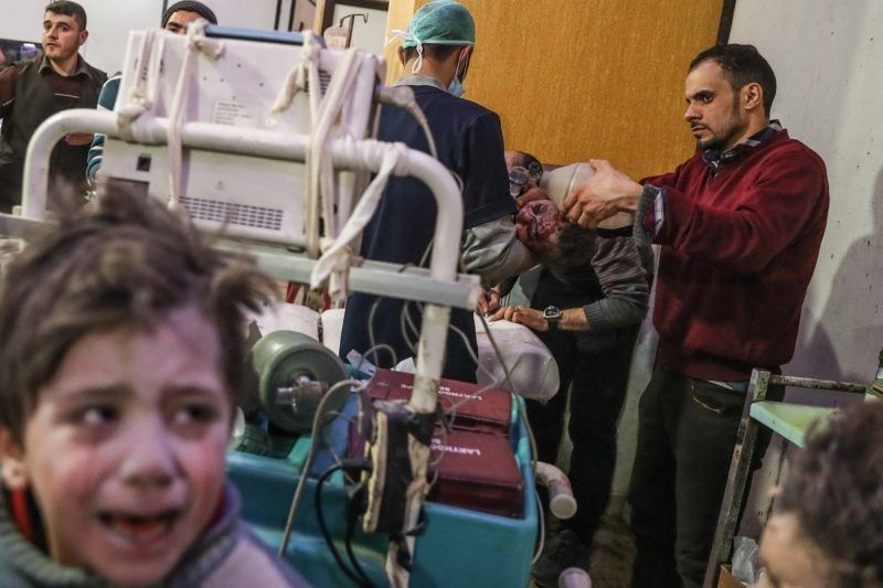 Dúma, 2018. február 20. Sebesült gyereket látnak el a szíriai felkelõk uralta kelet-gútai Dúma város kórházában 2018. február 20-án, a szíriai kormányerõk újabb légicsapása után. A fokozott kelet-gútai légi- és rakétatámadában mintegy száz civil vesztette életét, köztük húsz gyerek. (MTI/EPA/Mohamed Badra)