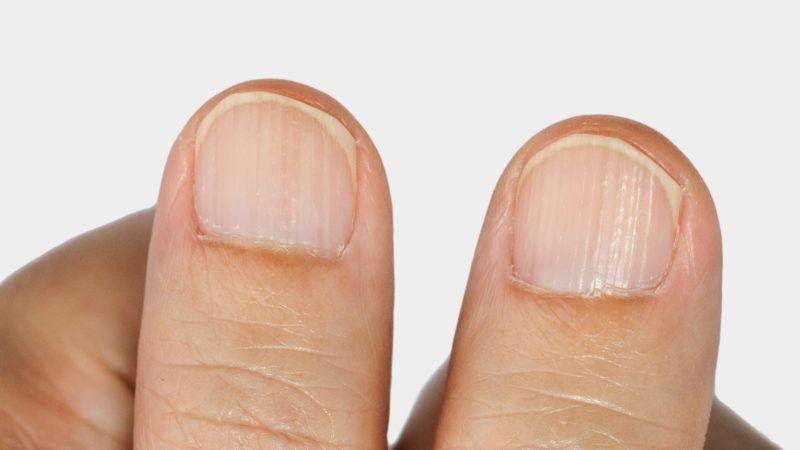 Vertical ridges on the fingernails symptoms deficiency  vitamins and minerals
