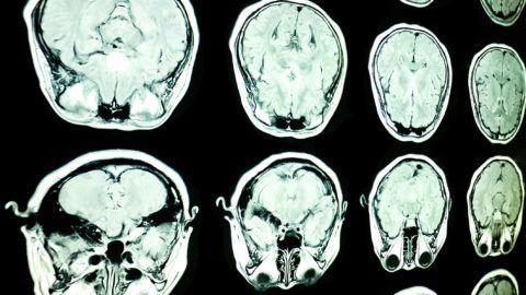 magnetic resonance image, mri scan of the brain