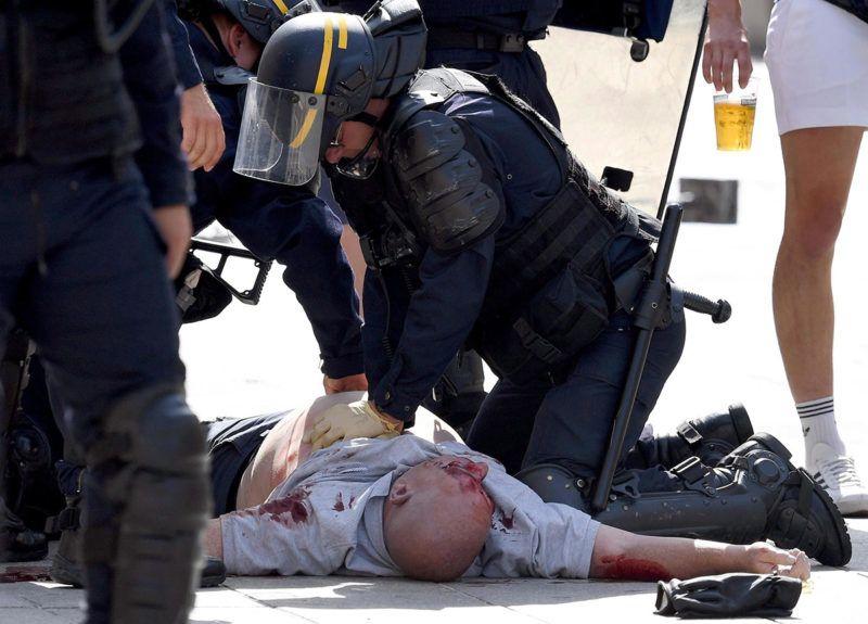 Marseille, 2016. június 11.Sebesült angol szurkolót ápolnak francia rohamrendőrök a franciaországi labdarúgó Európa-bajnokság Anglia - Oroszország mérkőzése előtt Marseille-ben 2016. június 11-én, amikor a randalírozó angol és orosz szurkolók egymással és a rendőrökkel csaptak össze. (MTI/EPA/Daniel Dal Zennaro)