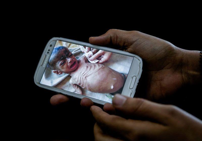 Mokka, 2018. május 3.A 2018. február 10-i képen egy jemeni orvos a Mokka déli kikötőváros kórházában mutatja a nyolc hónapos, Fadl nevű kisfiúról készült fényképet, amely napokkal az előtt készült, hogy a gyermek éhenhalt. A világ egyik legsúlyosabb humanitárius válsága sújtja a közel-keleti országot, ahol egyre súlyosbodik a kolerajárvány, a lakosság több mint 80 százaléka nem jut hozzá elegendő élelmiszerhez, ivóvízhez, illetve megfelelő egészségügyi ellátáshoz. (MTI/AP/Nariman el-Mofti)