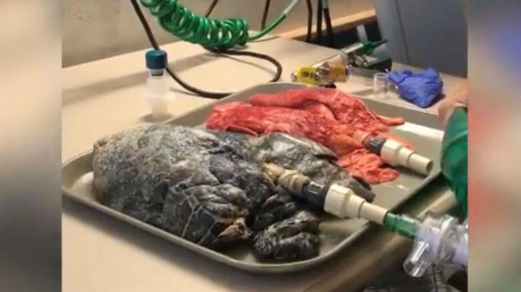 hogy néz ki egy dohányos tüdeje video bemutató a dohányzásról való leszokás egyszerű módjáról