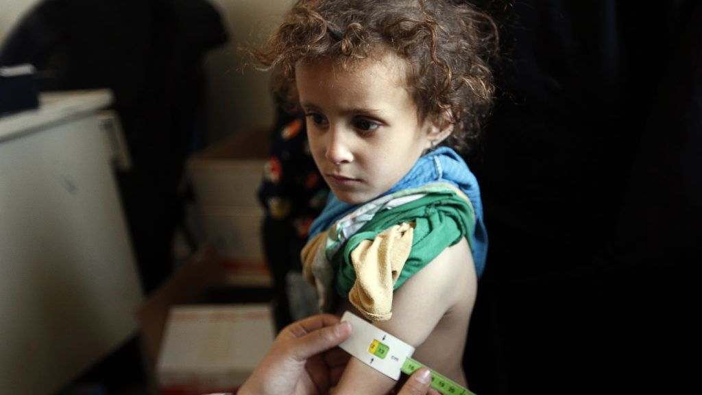 An infant suffering from malnutrition is weighed and measured at a medical centre in Bani Hawat, on the outskirts of the Yemeni capital Sanaa, on January 25, 2018. More than three-quarters of Yemenis are now in need of humanitarian aid and some 8.4 million at risk of famine, the UN humanitarian affairs office said on January 17. / AFP PHOTO / Mohammed HUWAIS