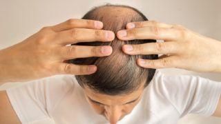close up of man controls hair loss