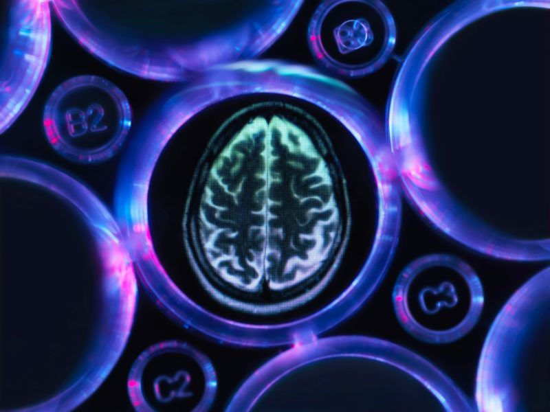 Alzheimer's and dementia research, a brain scan in multi well tray used for research experiments in laboratory
