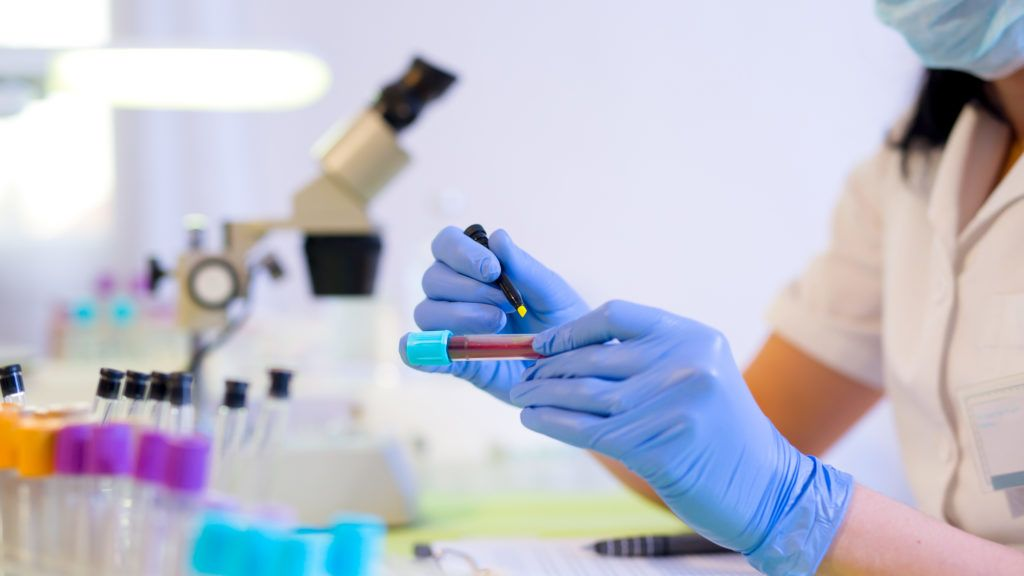 Woman working in a laboratory. He writes with a felt pen. Selective focus
