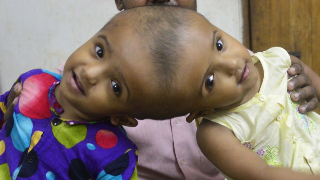 Conjoined twin girls Rabeya Islam and Rokeya Islam play at a Dhaka Medical Collage Hospital in Dhaka, Bangladesh on November 21, 2017. Taslima Khatun, a school teacher, gave a birth of the conjoined headed twins on 16 July 2016 after a cesarean. The twins have been admitted at a Dhaka Medical Collage Hospital for examination before potentially surgery to separate their heads.  (Photo by Mamunur Rashid/NurPhoto)