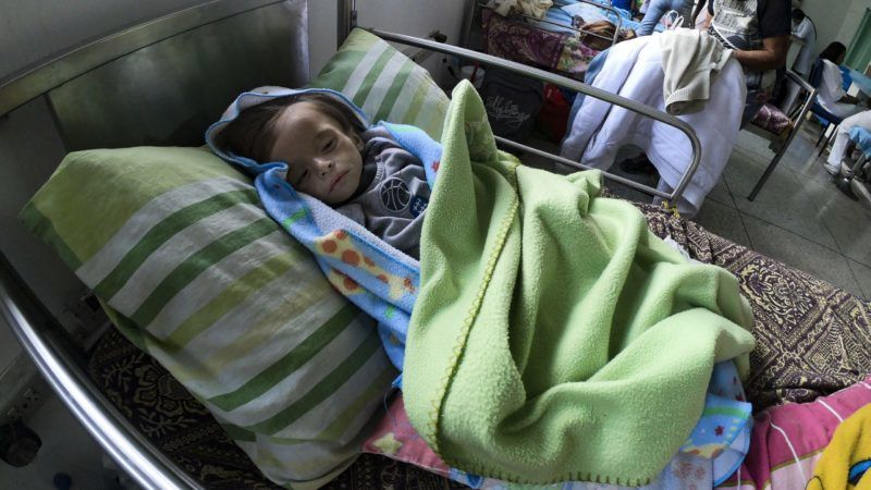 An undernourished baby remains in a hospital bed in Maracay, Aragua state, Venezuela on February 7, 2019. - The drama of undernourished mothers and children is widespread in Venezuela, where the shortage of food and medicines is hitting hard on the population and where inflation is expected to reach 10.000.000% this year. (Photo by YURI CORTEZ / AFP)