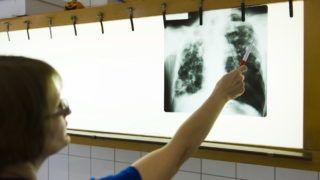 Nyíregyháza, 2011. március 21. Jobbágy Veronika osztályvezetõ fõorvos egy tbc-s beteg röntgenfelvételét értékeli 2011. március 21-én a Jósa András Oktató Kórház tüdõgondozójában, Nyíregyházán. Az Egészségügyi Világszervezet (WHO) március 24-én tartja a tuberkulózis (tbc) elleni küzdelem világnapját. MTI Fotó: Balázs Attila