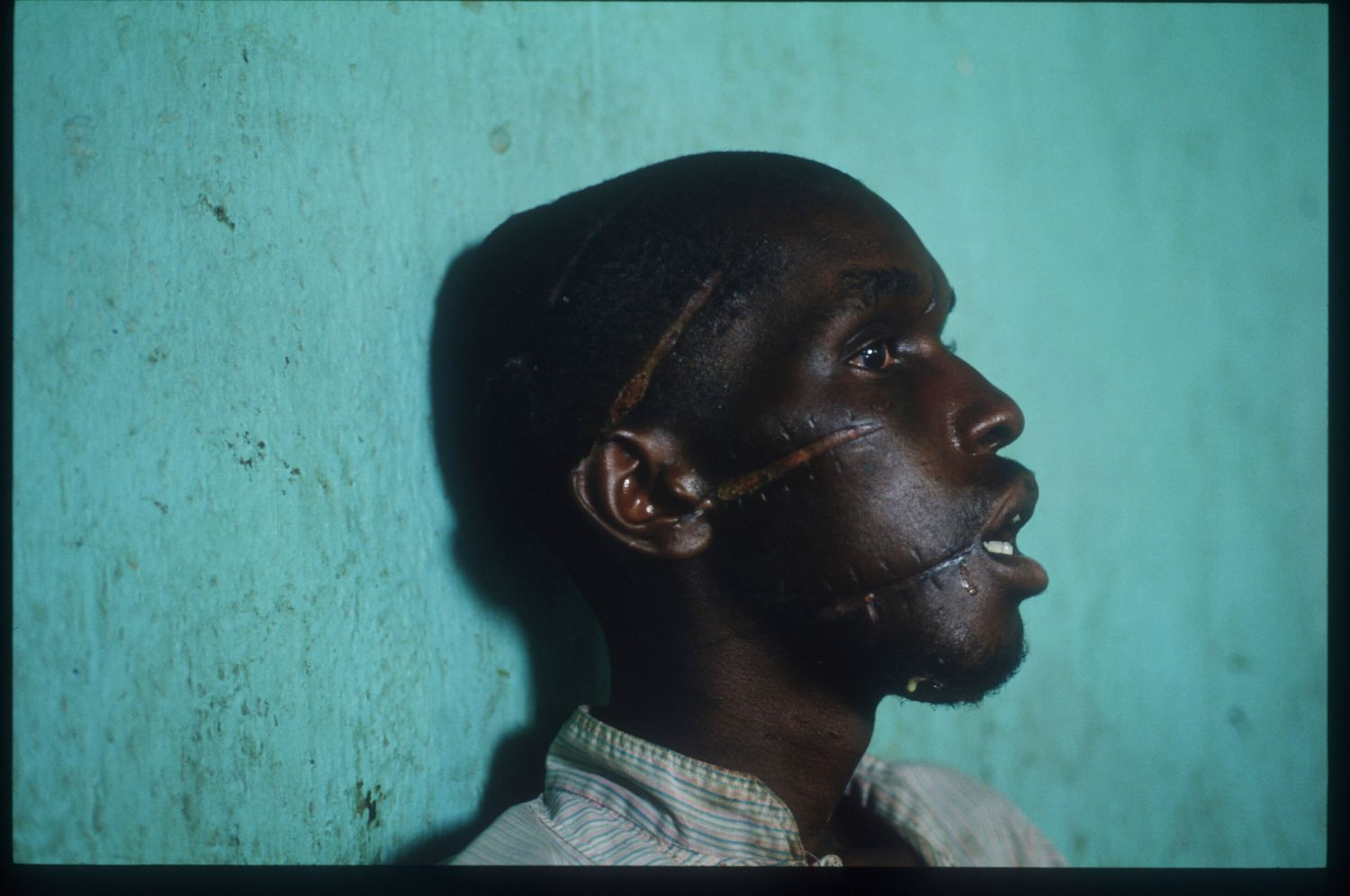 221260 12: An unidentified Tutsi man displays slashes on his face and head June 3, 1994 in Rwanda. The Tutsis entered Rwanda from exile in Uganda after the genocide of their people. (Photo by Scott Peterson/Liaison)