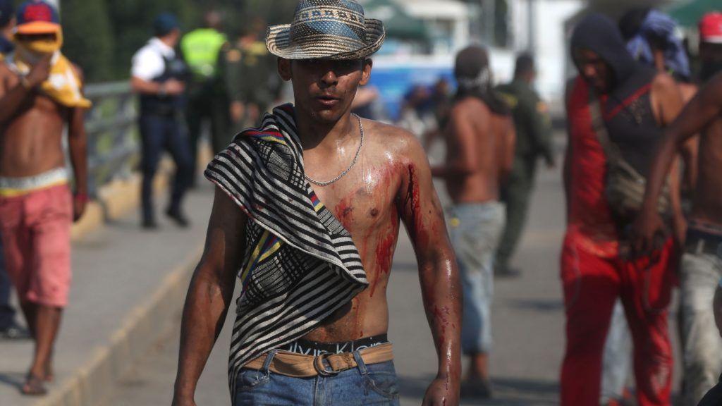 Cúcuta, 2019. február 26. A Simón Bolívar hidat lezáró venezuelai rendõrökkel történt összecsapásokban megsebesült venezuelai tüntetõk egyike a határ kolumbiai oldalán lévõ Cúcutában 2019. február 25-én. Nicolás Maduro venezuelai elnök három nappal korábban rendelte el a Kolumbiával közös határ egyes átkelõinek lezárását, hogy megakadályozza az Egyesült Államokból érkezõ segélyszállítmány bejuttatását az országba. Venezuelában hatalmi harc zajlik Maduro és a magát ideiglenes elnökké nyilvánító Juan Guaidó parlamenti elnök között. Guaidó, aki január 23-án kikiáltotta magát Venezuela ideiglenes elnökének, az Egyesült Államok és több más nyugati ország támogatását élvezi. MTI/EPA-EFE/Ernesto Guzmán Jr