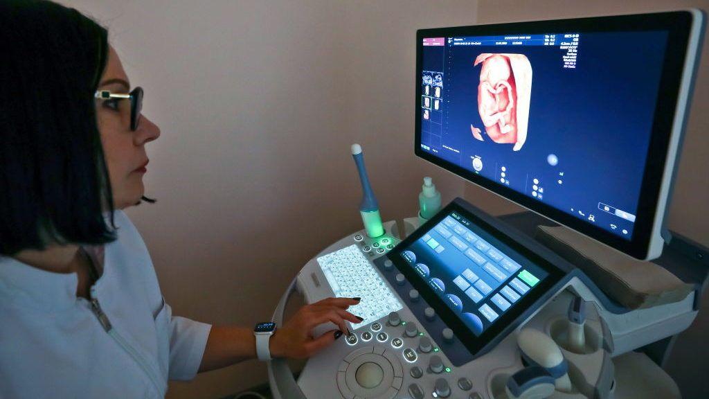 SIMFEROPOL, RUSSIA - FEBRUARY 27, 2019: A doctor performs an ultrasound scan of a pregnant woman in the perinatal centre at Semashko Crimean Republican Hospital in Simferopol, Crimea. Sergei Malgavko/TASS (Photo by Sergei MalgavkoTASS via Getty Images)