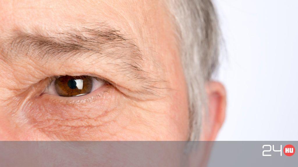 hogyan kezeljük a szem pikkelysömörét
