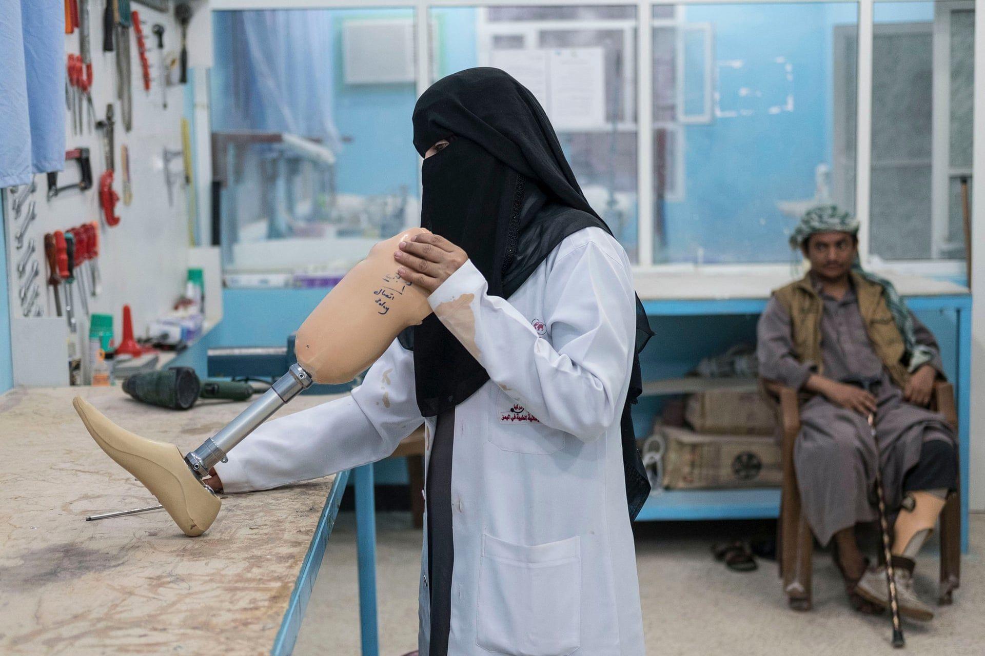 Fayda Ali Ali ápolónő  ortopédiai osztályában művégtagot állít be Marib városban Yemenben. Fotó: Heathcliff O'Malley/Daily Telegraph / thebppa