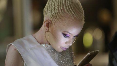 Harare, 2019. május 25. Az albínók számára második alkalommal megrendezett szépségverseny egyik résztvevõje nézi a mobiltelefonját Hararéban 2019. május 25-én. Az ország 16 milliós lakosságából mintegy 70 ezer ember albinó, õket rendszeresen inzultálják, diszkriminálják és megbélyegzik. MTI/AP/Tsvangirayi Mukwazhi