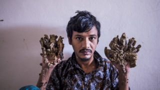 """Abul Bajandar , 28, dubbed """"Tree Man"""" for massive bark-like warts on his hands and feet, sits at Dhaka Medical College Hospital in Dhaka on June 24, 2019. - Frustrated by worsening condition, a Bangladeshi father dubbed """"Tree Man"""" for the bark-like growths on his body said on June 24 he wants to amputate his hands to get relief from """"unbearable pain"""". (Photo by Munir UZ ZAMAN / AFP)"""