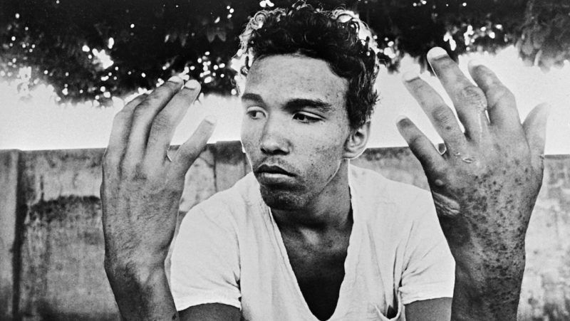 A young man shows his hands contaminated by strong nuclear radiation on September 30, 1987 after the nuclear radiation incident of Goiania, Brazil on September 28, 1987. (Photo by - / O Popular / AFP)
