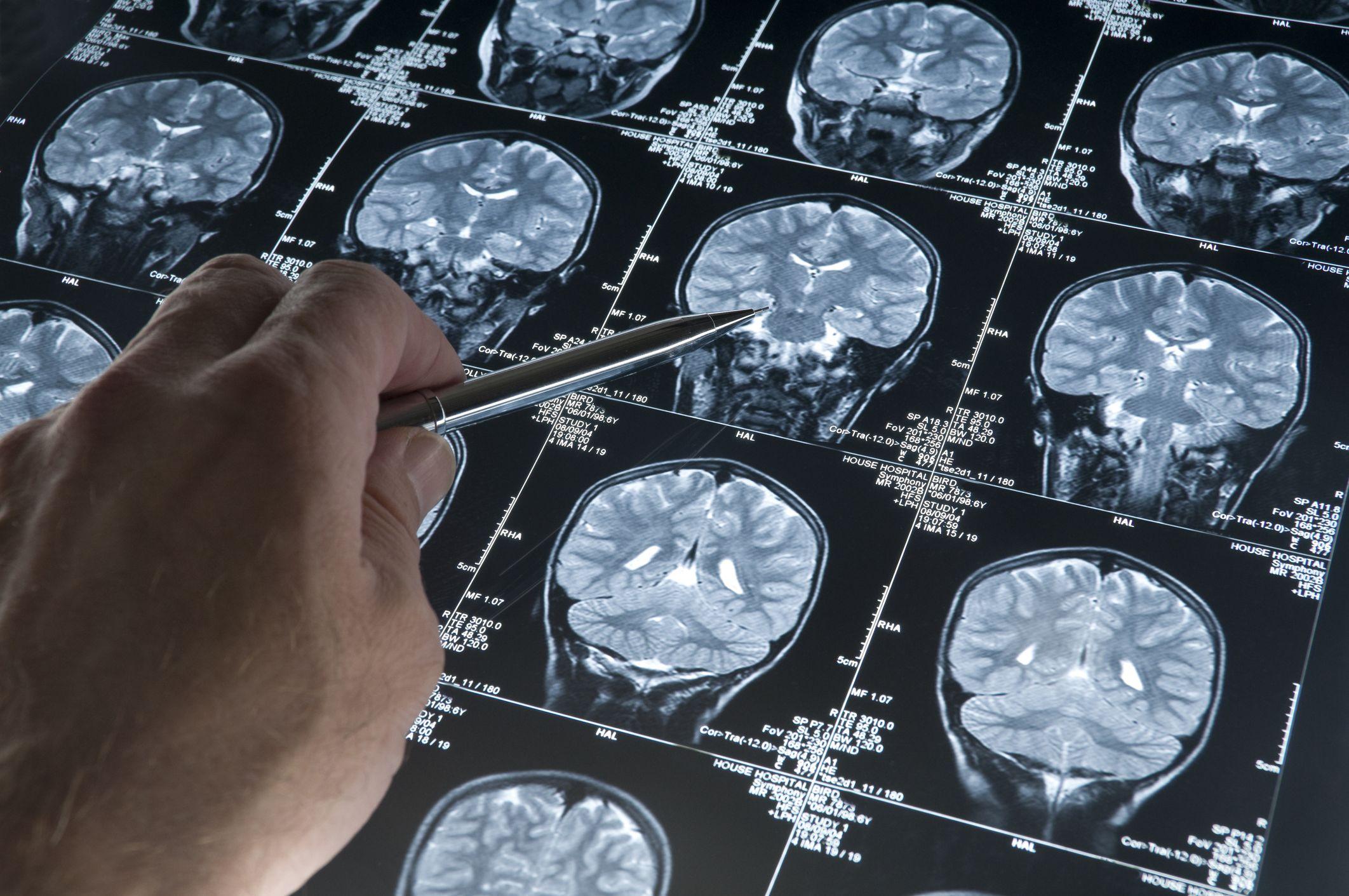 agydaganat súlycsökkenést okoz