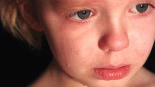 An upset child 2