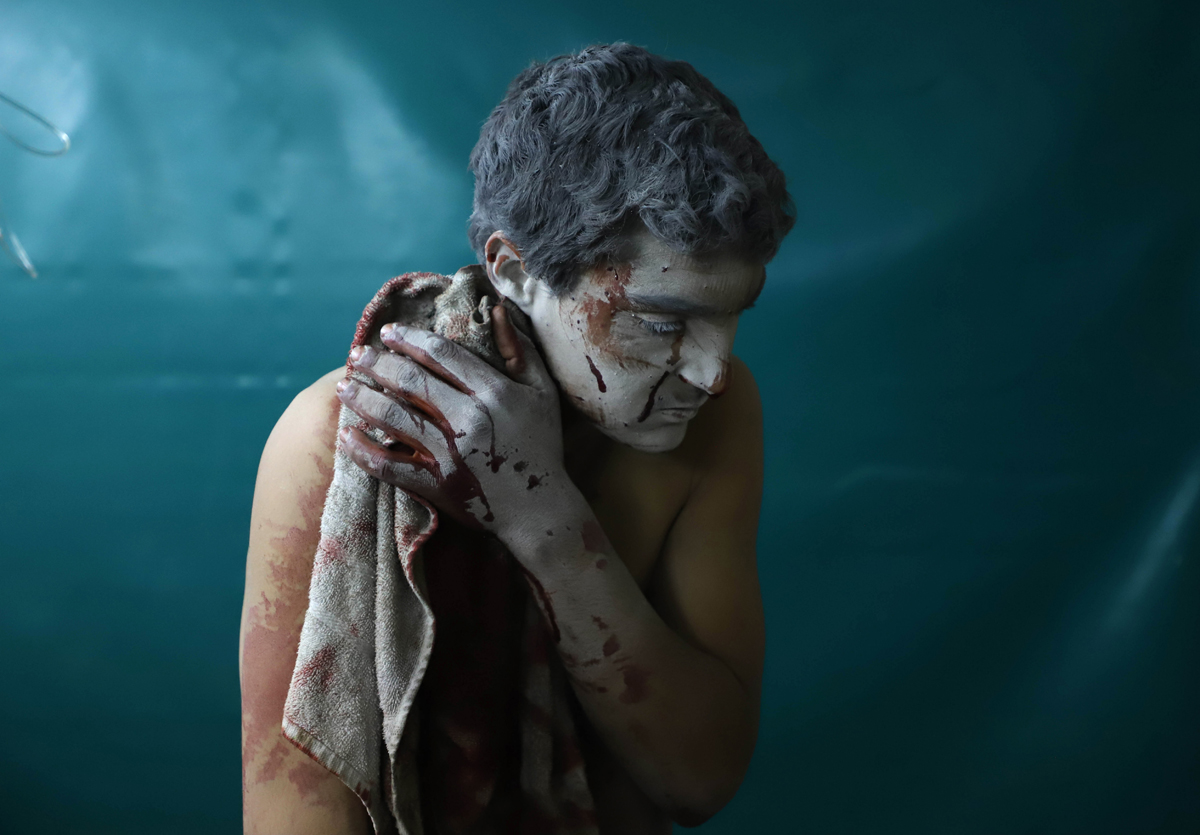 EDITORS NOTE: Graphic content / A wounded Syrian man waits for treatment at a makeshift clinic during Syrian government air strikes on Zamalka, in the rebel enclave of Eastern Ghouta on the outskirts of Damascus on March 13, 2018. More than 1,180 civilians have been killed since regime forces on February 18 launched an air and ground assault on the enclave, the Britain-based Syrian Observatory for Human Rights monitor says. Eastern Ghouta's 400,000 residents have been living under government siege since 2013, facing severe food and medecine shortages even before the latest assault. / AFP PHOTO / AMER ALMOHIBANY