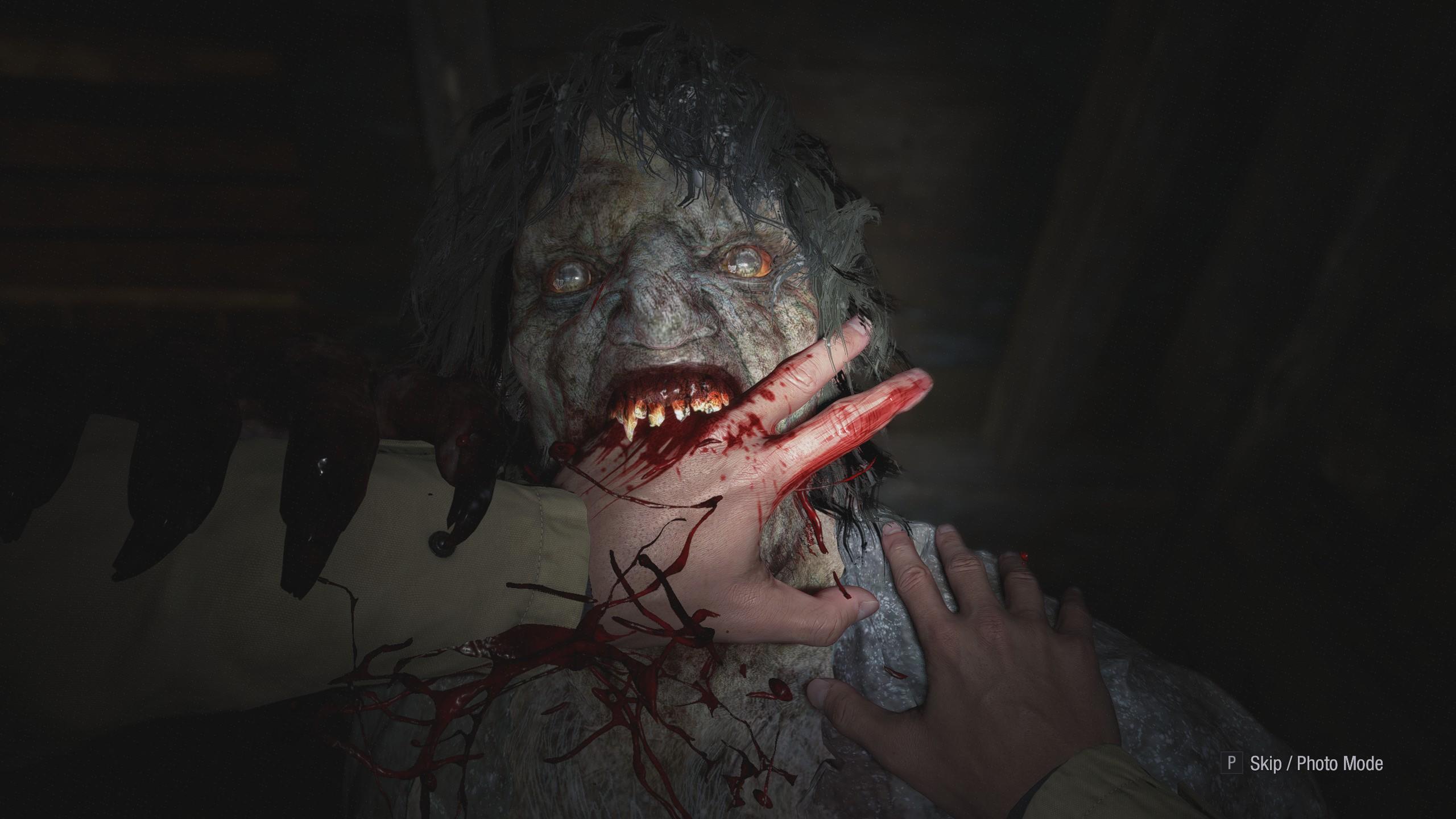 Egy likán zombi leharapja Ethan ujjait
